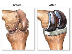 new knee